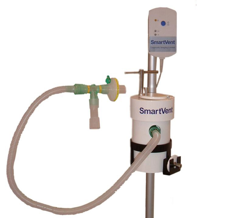 Picture of the Smartvent system
